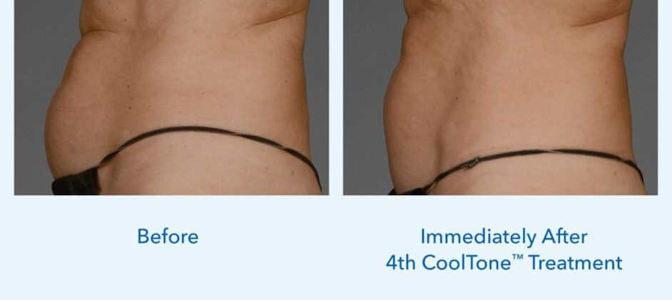 CoolTone-Female-Abdomen-Dr-Cox-0001F-2Set-Vertical