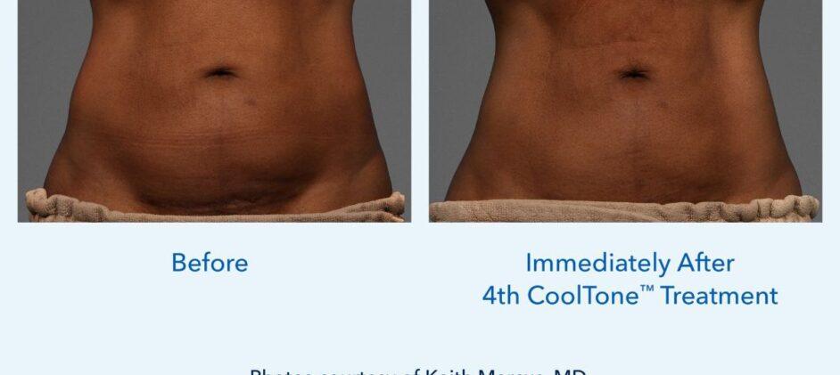 CoolTone-Female-Abdomen-Dr-Marcus-0001F-2Set-Vertical