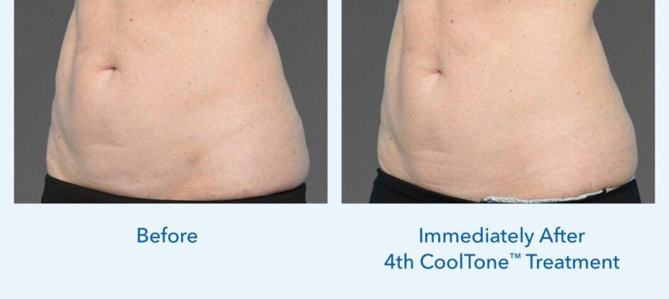 CoolTone-Female-Abdomen-Dr-Saltz-0001F-FRV-2Set-Vertical