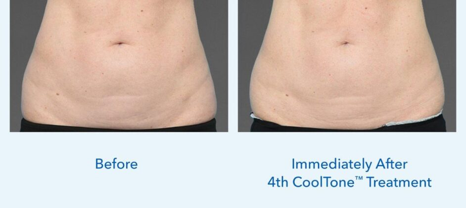 CoolTone-Female-Abdomen-Dr-Saltz-0001F-FV-2Set-Vertical