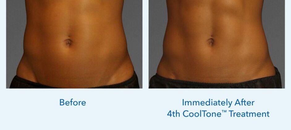 CoolTone-Female-Abdomen-Dr-Welsh-0001F-2Set-Vertical