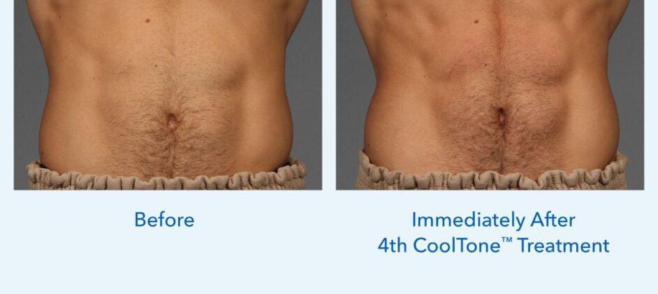 CoolTone-Male-Abdomen-Dr-Marcus-0001M-2Set-Vertical