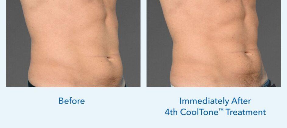 CoolTone-Male-Abdomen-Dr-Saltz-0001M-FLV-2Set-Vertical