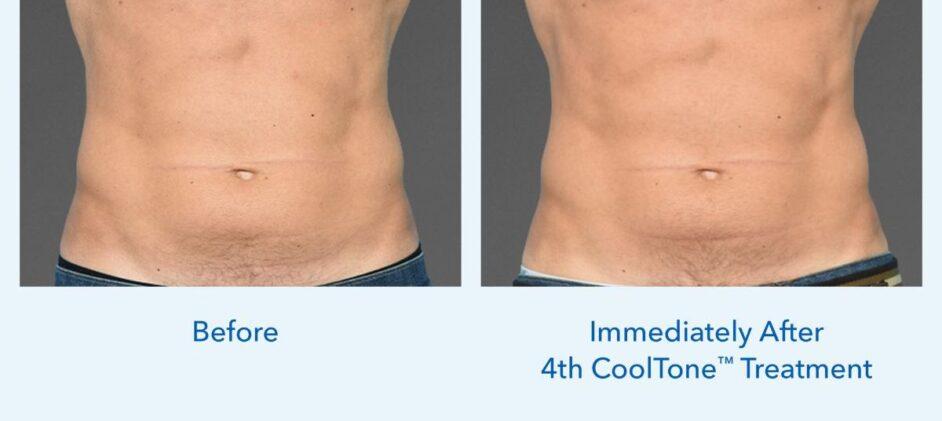 CoolTone-Male-Abdomen-Dr-Saltz-0001M-FV-2Set-Vertical